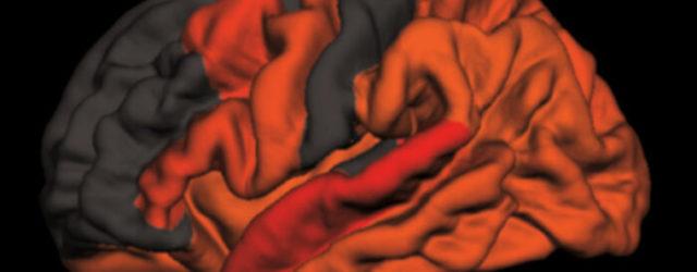 Снижение глубокого сна связано с ранними признаками болезни Альцгеймера