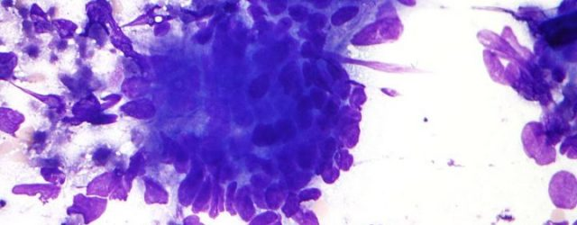 Исследование идентифицирует новые генетические факторы риска развития колоректального рака